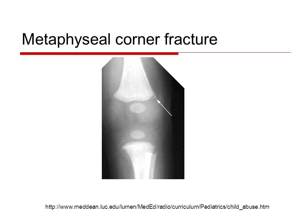 Metaphyseal corner fracture http://www.meddean.luc.edu/lumen/MedEd/radio/curriculum/Pediatrics/child_abuse.htm
