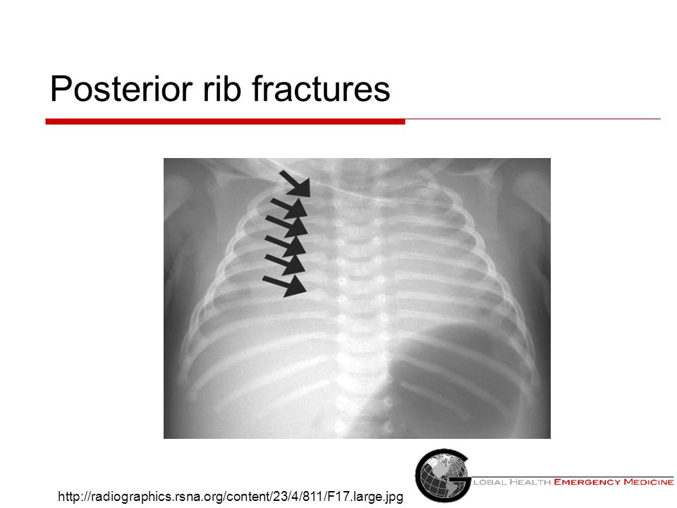 Posterior rib fractures http://radiographics.rsna.org/content/23/4/811/F17.large.jpg