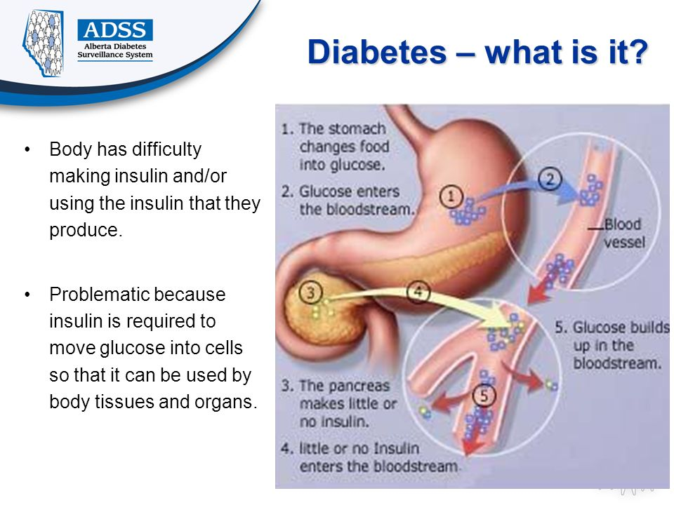 Diabetes – what is it? Body has difficulty making insulin and/or using the insulin that they produce. Problematic because insulin is required to move