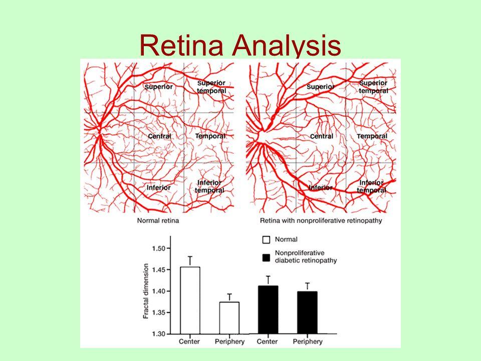 Retina Analysis