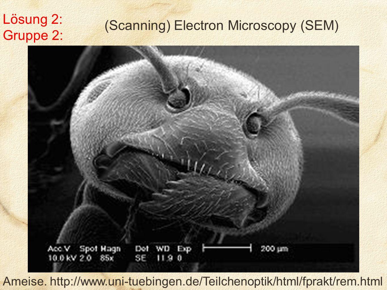 Lösung 2: Gruppe 2: (Scanning) Electron Microscopy (SEM) Ameise.