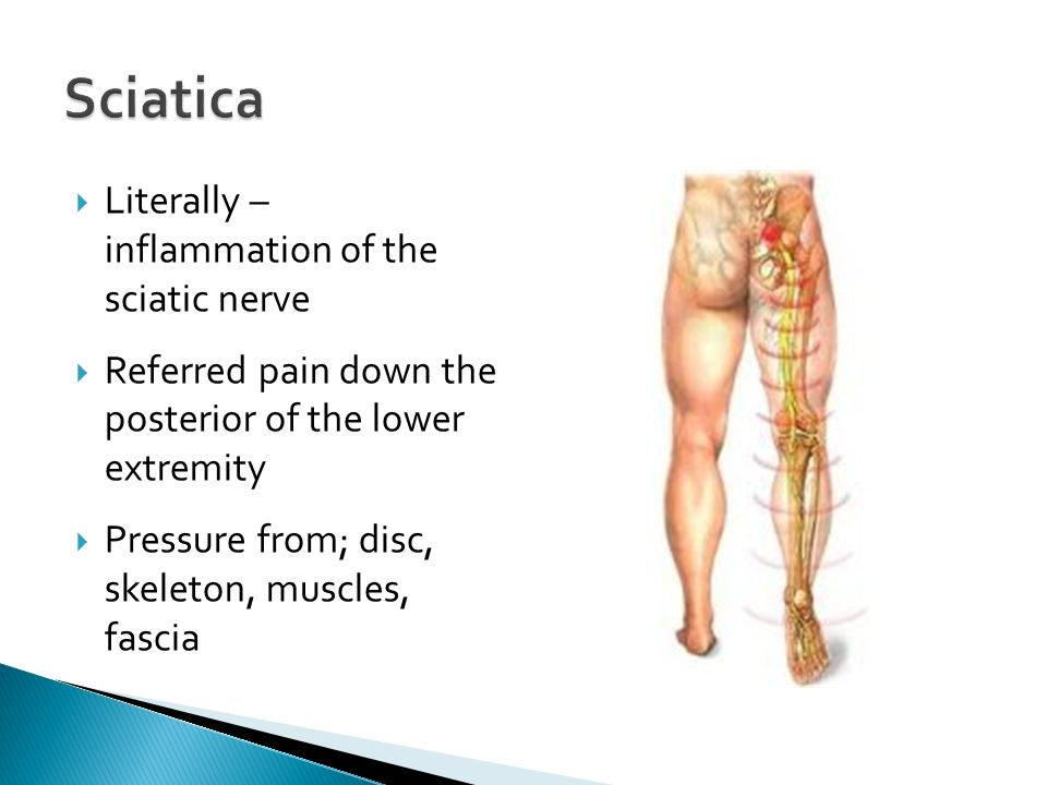 Literally – inflammation of the sciatic nerve Referred pain down the posterior of the lower extremity Pressure from; disc, skeleton, muscles, fascia