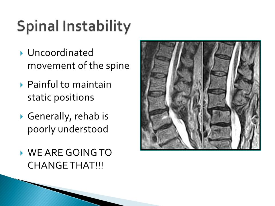 Uncoordinated movement of the spine Painful to maintain static positions Generally, rehab is poorly understood WE ARE GOING TO CHANGE THAT!!!
