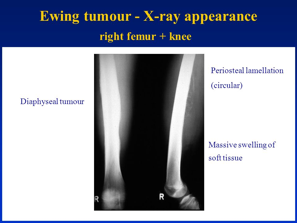 Ewing tumour - X-ray appearance right femur + knee Periosteal lamellation (circular) Massive swelling of soft tissue Diaphyseal tumour