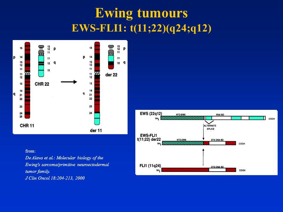 from: De Alava et al.: Molecular biology of the Ewing's sarcoma/primitive neuroectodermal tumor family. J Clin Oncol 18:204-213, 2000 Ewing tumours EW