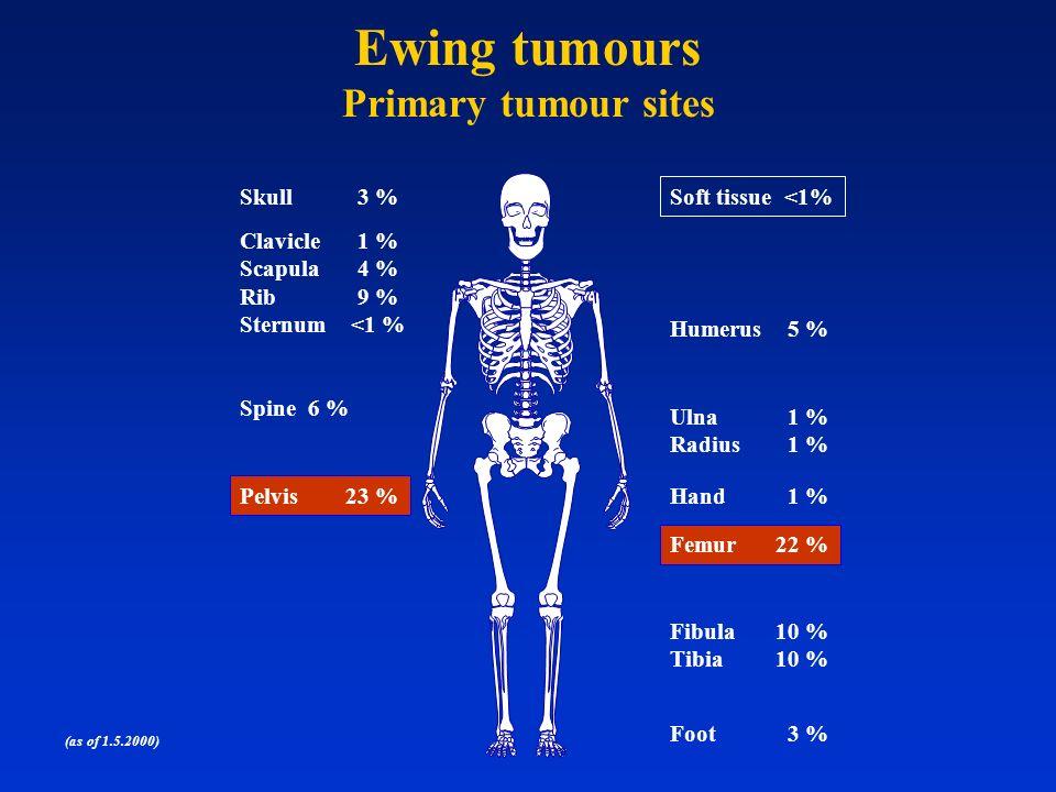 (as of 1.5.2000) Femur22 % Hand 1 % Ulna 1 % Radius 1 % Humerus 5 % Fibula10 % Tibia10 % Foot 3 % Skull 3 % Spine 6 % Pelvis23 % Clavicle 1 % Scapula