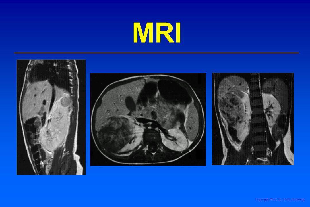 MRI Copyright Prof. Dr. Graf, Homburg