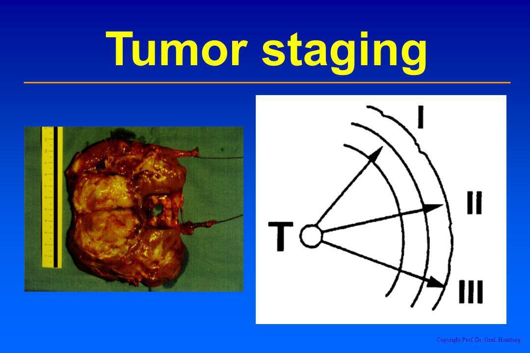 Tumor staging Copyright Prof. Dr. Graf, Homburg