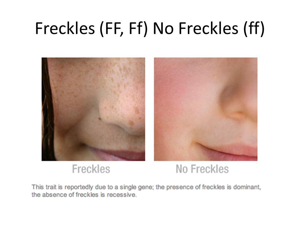 Freckles (FF, Ff) No Freckles (ff)