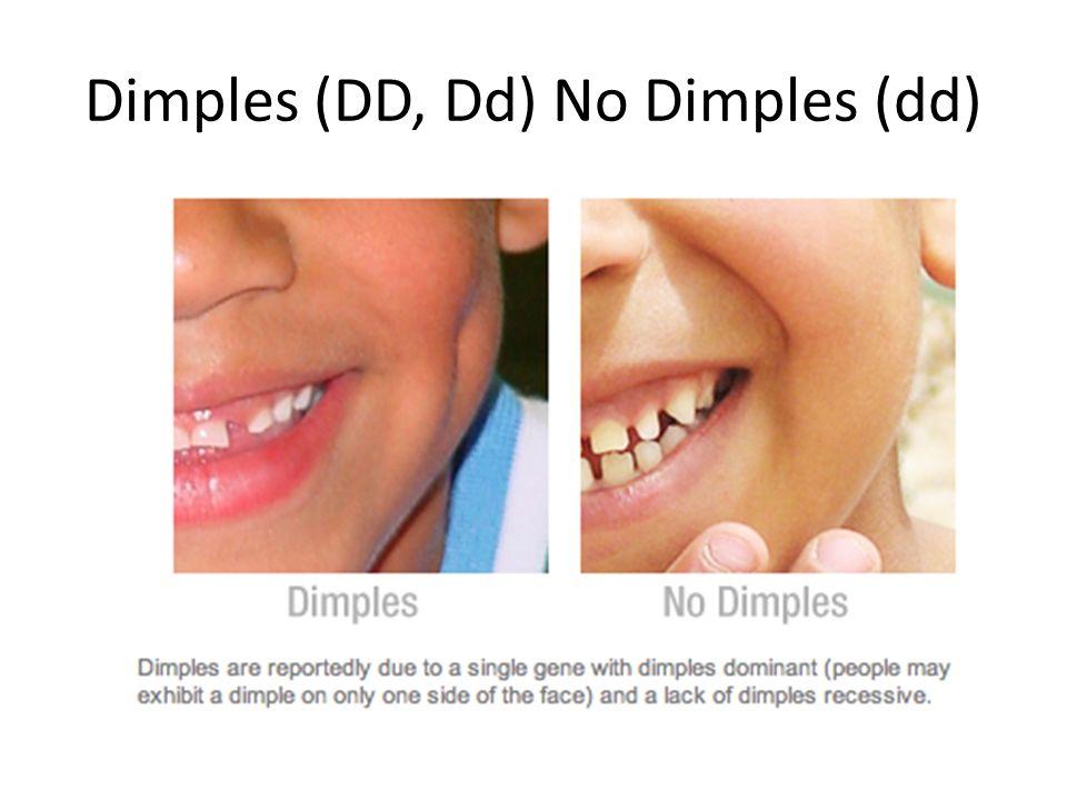 Dimples (DD, Dd) No Dimples (dd)