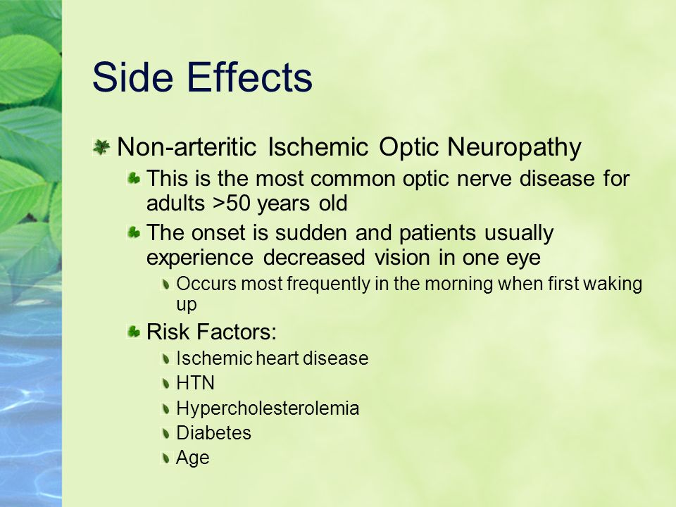 Side Effects Non-arteritic Ischemic Optic Neuropathy This is the most common optic nerve disease for adults >50 years old The onset is sudden and pati