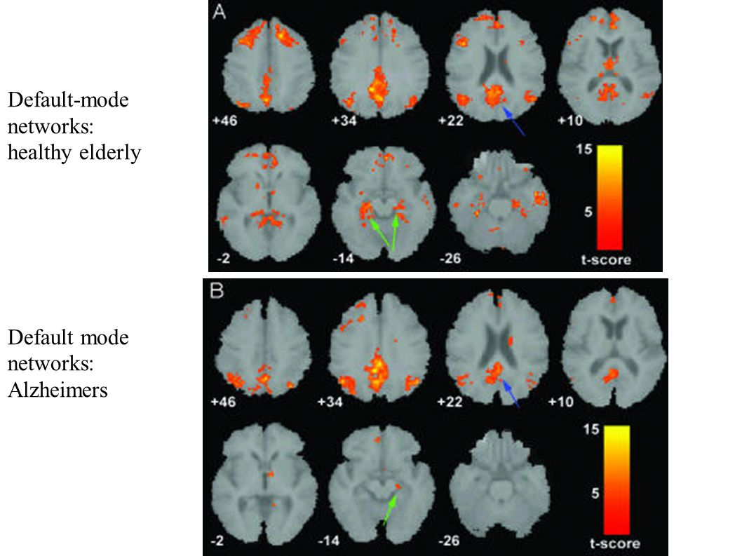 Default-mode networks: healthy elderly Default mode networks: Alzheimers