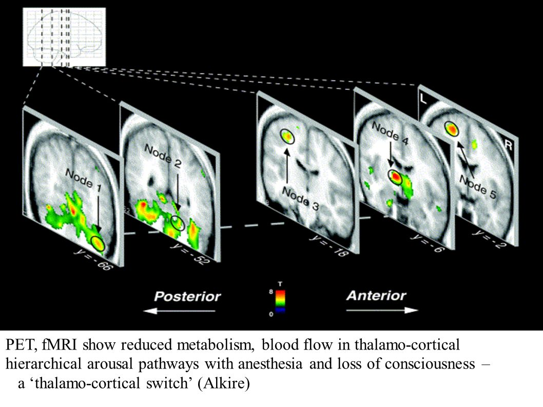 PET, fMRI show reduced metabolism, blood flow in thalamo-cortical hierarchical arousal pathways with anesthesia and loss of consciousness – a thalamo-
