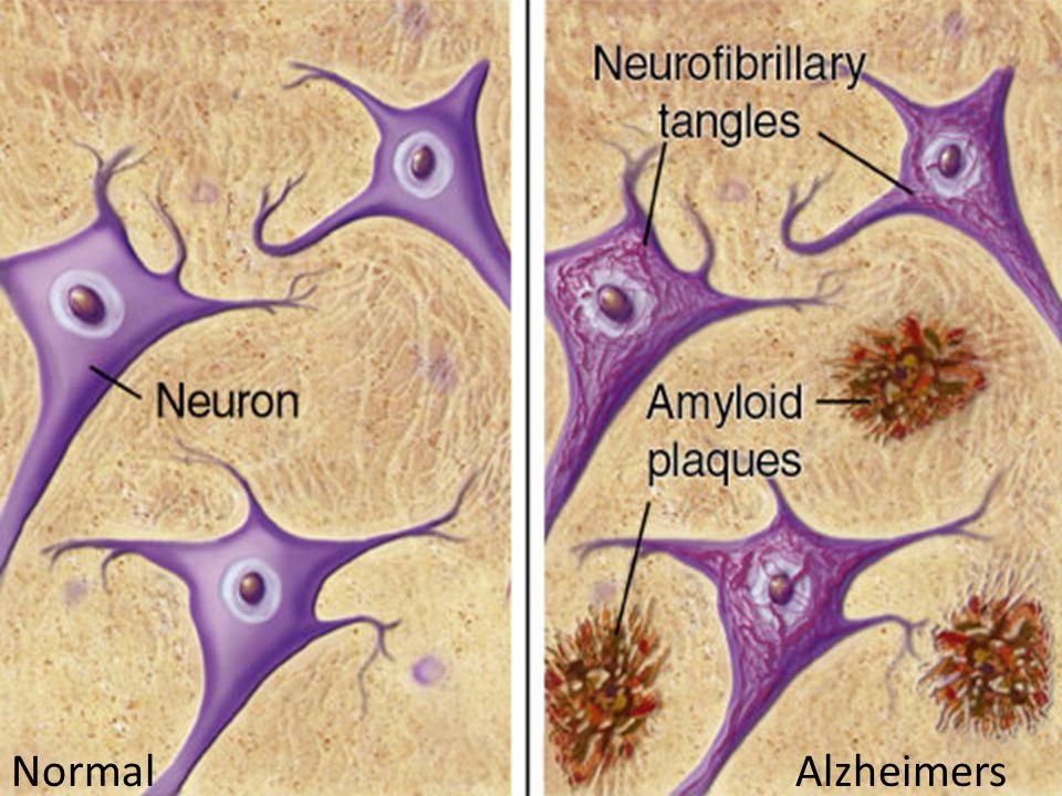 Normal Alzheimers