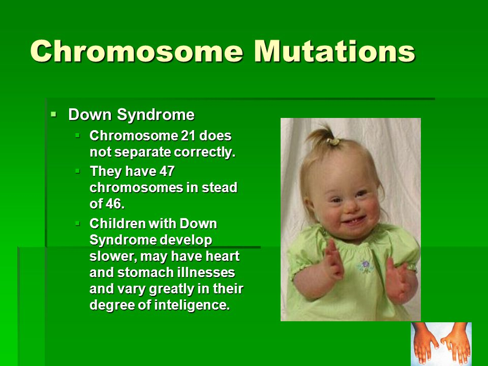 Chromosome Mutations Down Syndrome Down Syndrome Chromosome 21 does not separate correctly. Chromosome 21 does not separate correctly. They have 47 ch