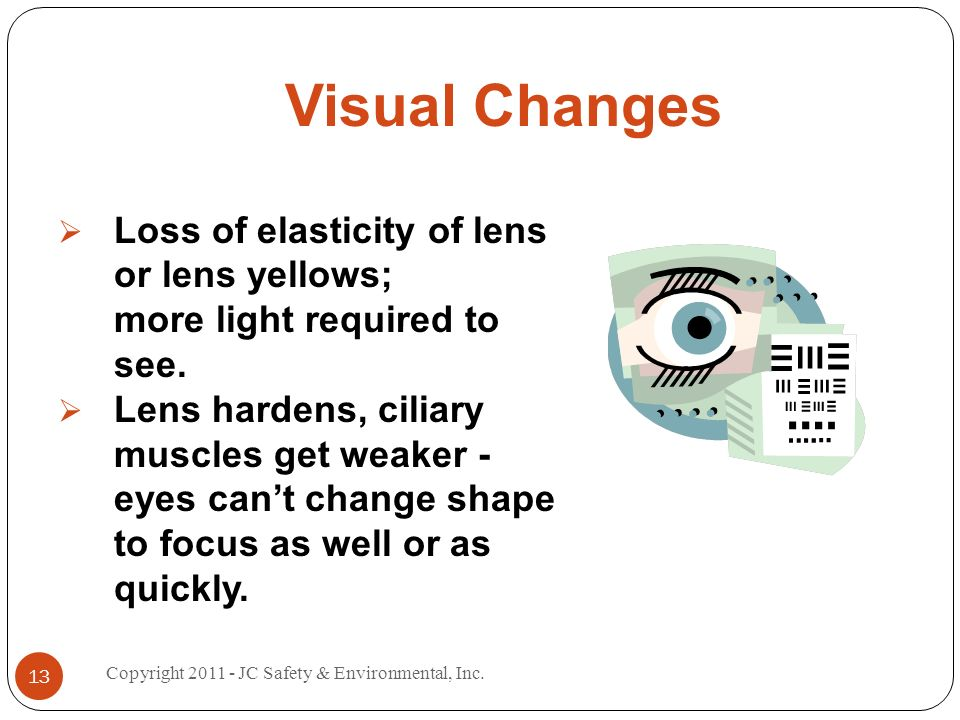 Visual Changes Loss of elasticity of lens or lens yellows; more light required to see.