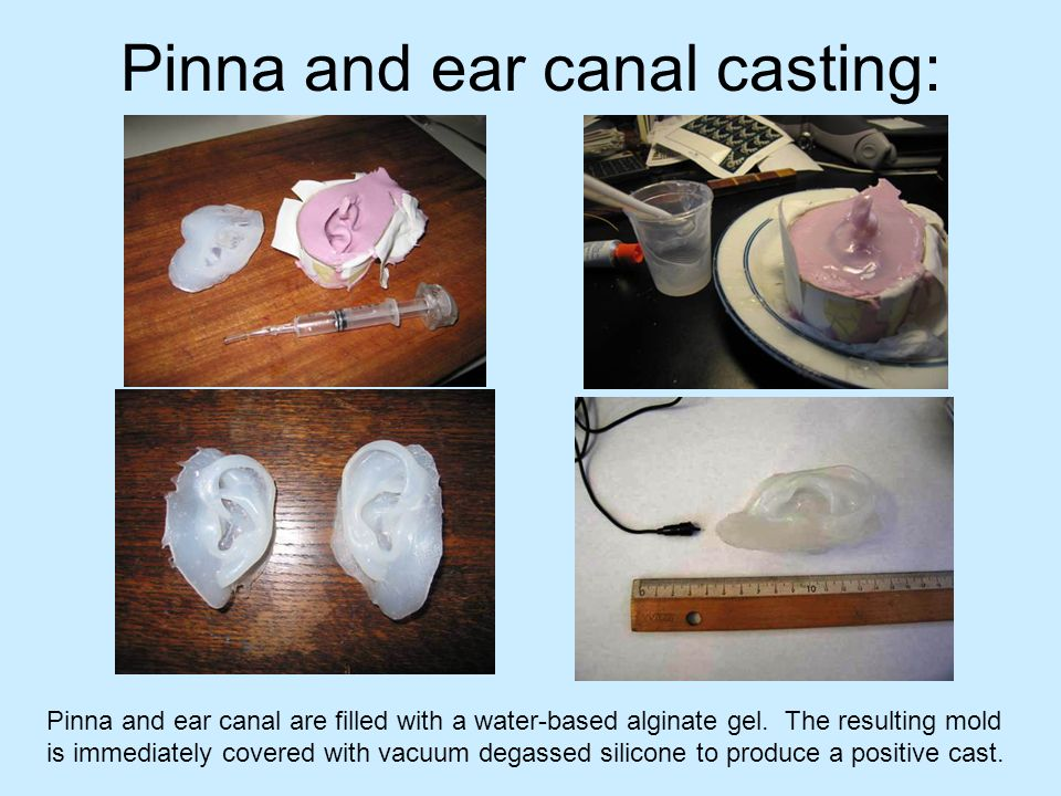 Pinna and ear canal casting: Pinna and ear canal are filled with a water-based alginate gel. The resulting mold is immediately covered with vacuum deg