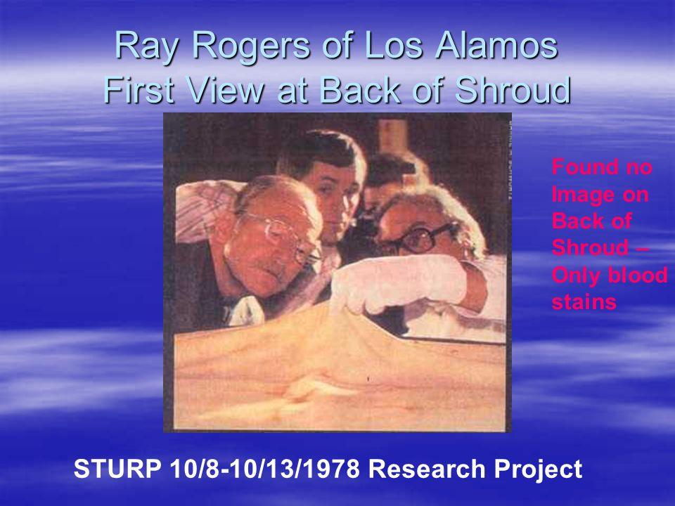 Ray Rogers of Los Alamos First View at Back of Shroud STURP 10/8-10/13/1978 Research Project Found no Image on Back of Shroud – Only blood stains