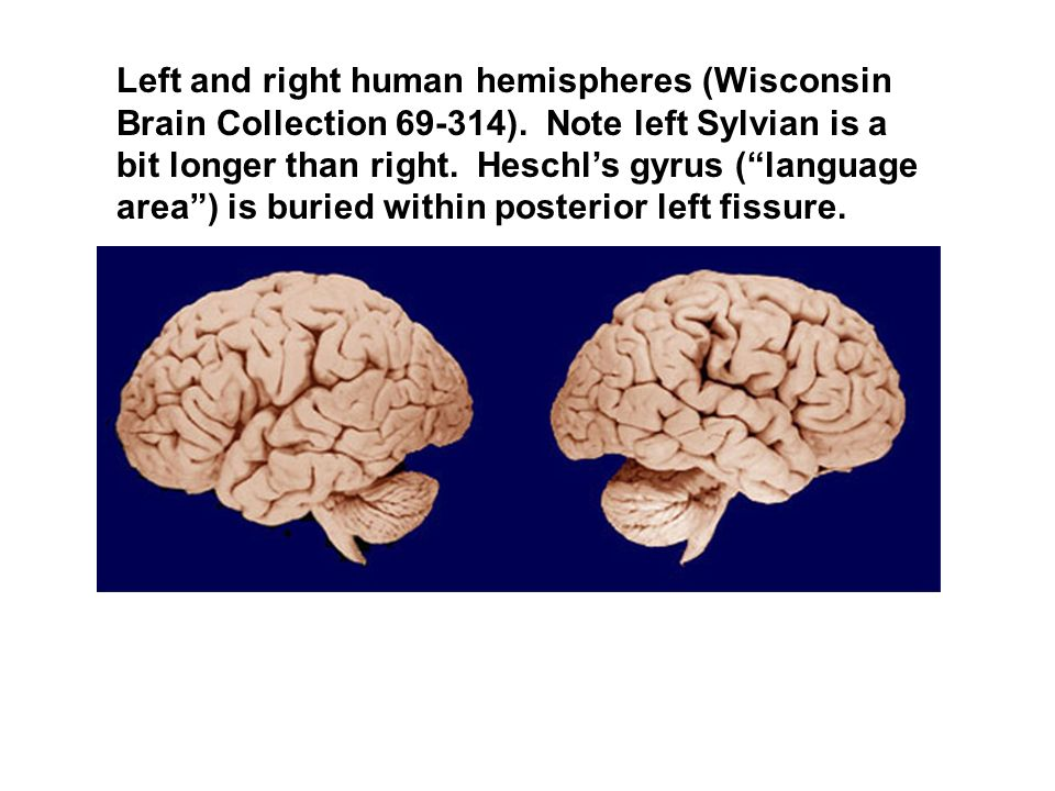 Left and right human hemispheres (Wisconsin Brain Collection 69-314). Note left Sylvian is a bit longer than right. Heschls gyrus (language area) is b