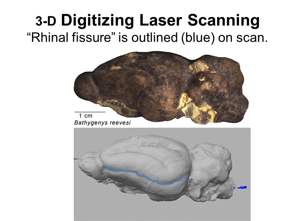 3-D Digitizing Laser Scanning Rhinal fissure is outlined (blue) on scan.