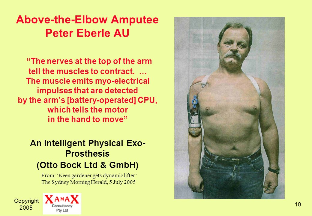 Copyright Above-the-Elbow Amputee Peter Eberle AU The nerves at the top of the arm tell the muscles to contract.