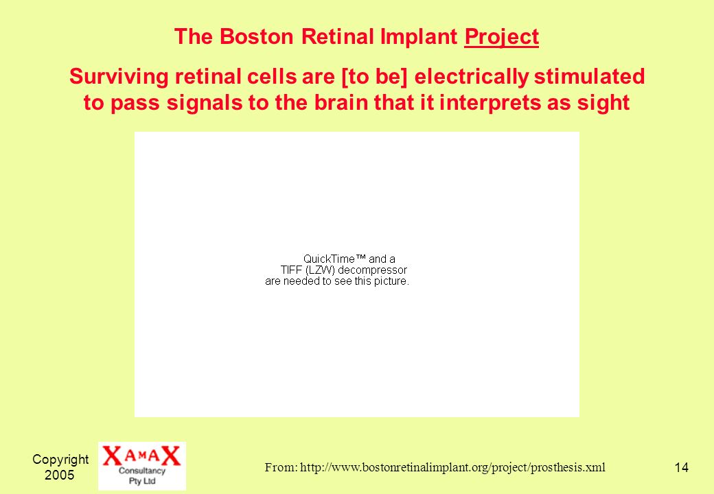 Copyright The Boston Retinal Implant Project Surviving retinal cells are [to be] electrically stimulated to pass signals to the brain that it interprets as sight From: