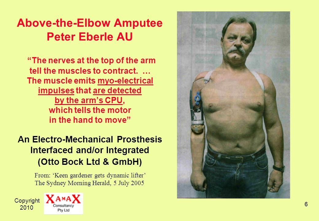 Copyright 2010 6 Above-the-Elbow Amputee Peter Eberle AU The nerves at the top of the arm tell the muscles to contract. … The muscle emits myo-electri