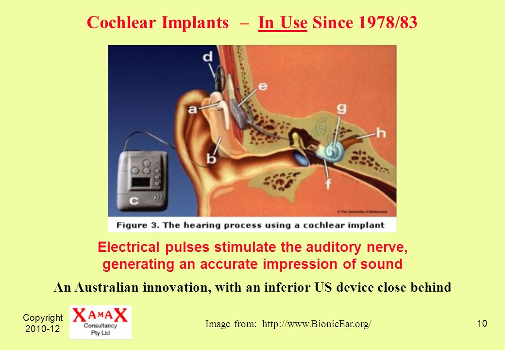 Copyright 2010-12 10 Electrical pulses stimulate the auditory nerve, generating an accurate impression of sound Image from: http://www.BionicEar.org/ An Australian innovation, with an inferior US device close behind Cochlear Implants – In Use Since 1978/83