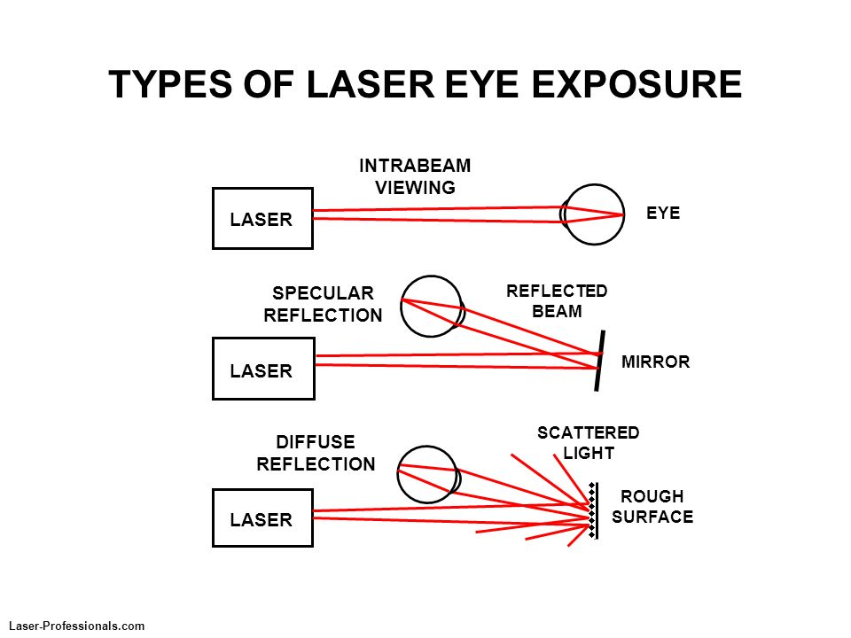 TYPES OF LASER EYE EXPOSURE EYE INTRABEAM VIEWING LASER DIFFUSE REFLECTION LASER SCATTERED LIGHT MIRROR SPECULAR REFLECTION LASER REFLECTED BEAM ROUGH