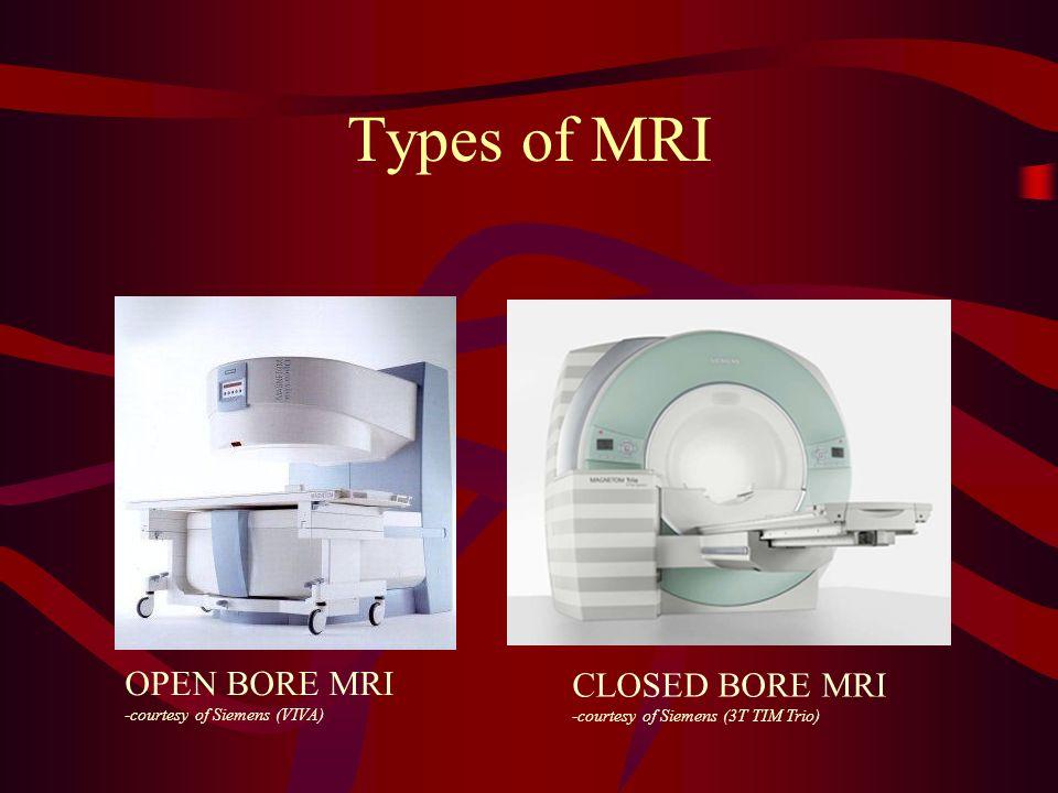 Types of MRI OPEN BORE MRI -courtesy of Siemens (VIVA) CLOSED BORE MRI -courtesy of Siemens (3T TIM Trio)