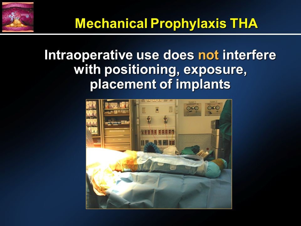 Mechanical Prophylaxis THA Intraoperative use does not interfere with positioning, exposure, placement of implants