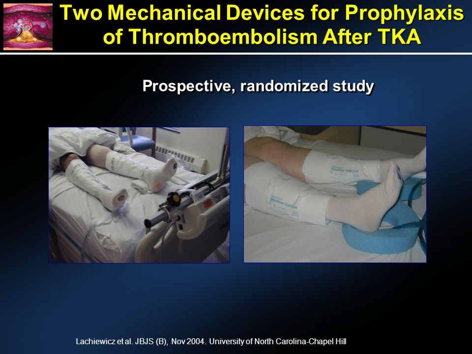 Two Mechanical Devices for Prophylaxis of Thromboembolism After TKA Lachiewicz et al.
