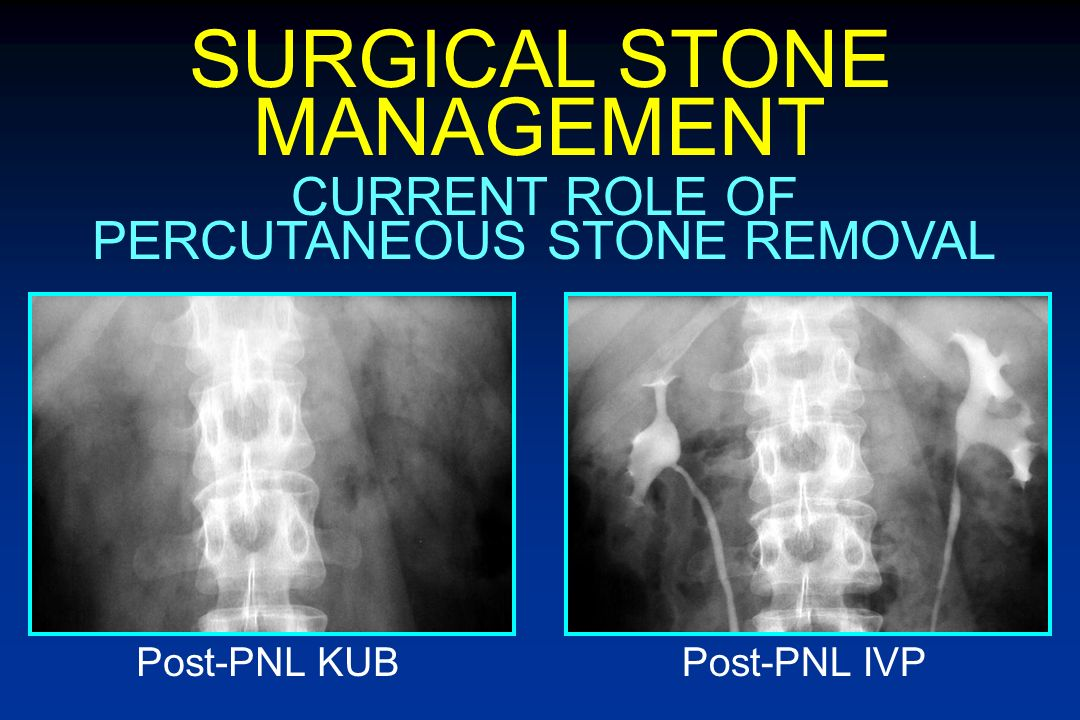 SURGICAL STONE MANAGEMENT CURRENT ROLE OF PERCUTANEOUS STONE REMOVAL Pre-op KUBPost-SWL KUB