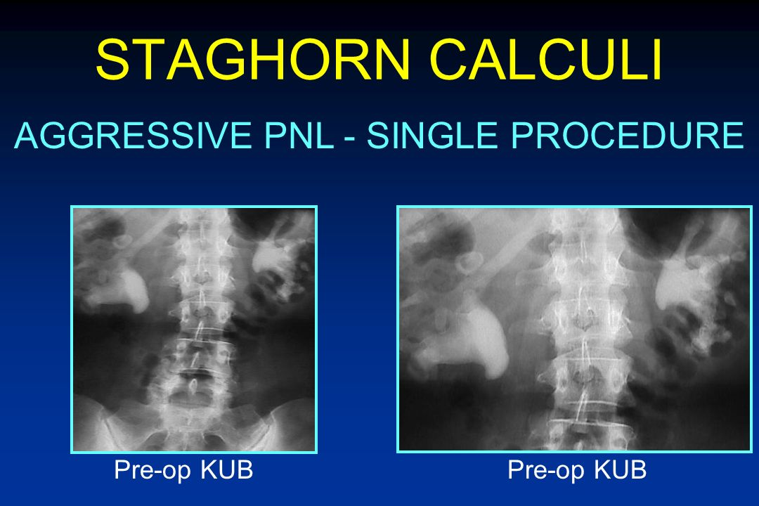STAGHORN CALCULI SANDWICH THERAPY