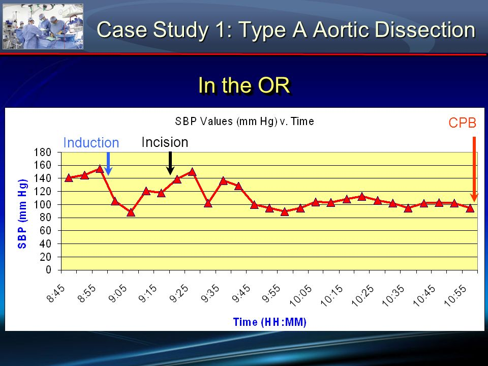 CPB Induction Incision Case Study 1: Type A Aortic Dissection In the OR