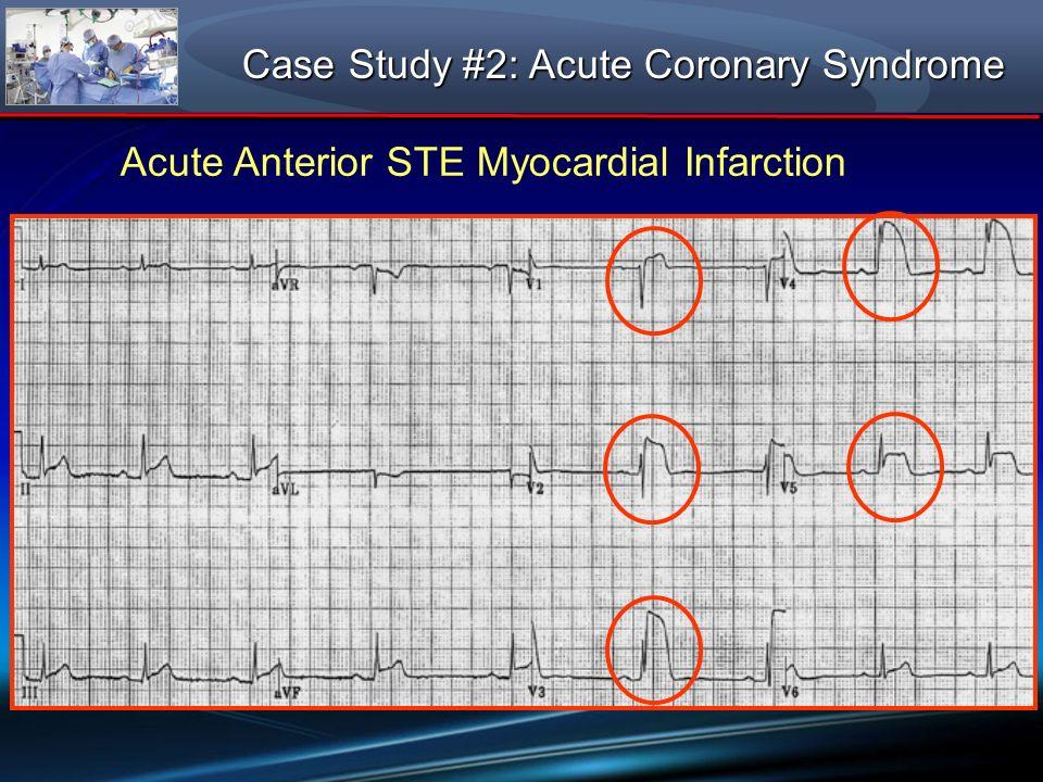 Acute Anterior STE Myocardial Infarction Case Study #2: Acute Coronary Syndrome