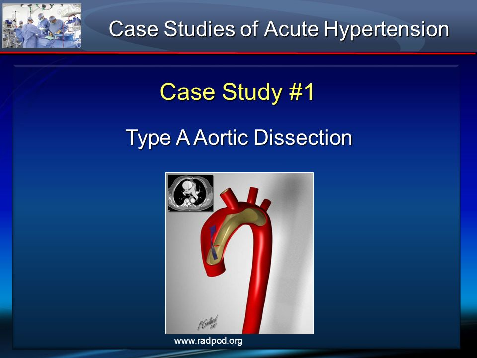 Case Studies of Acute Hypertension Case Study #1 Type A Aortic Dissection www.radpod.org