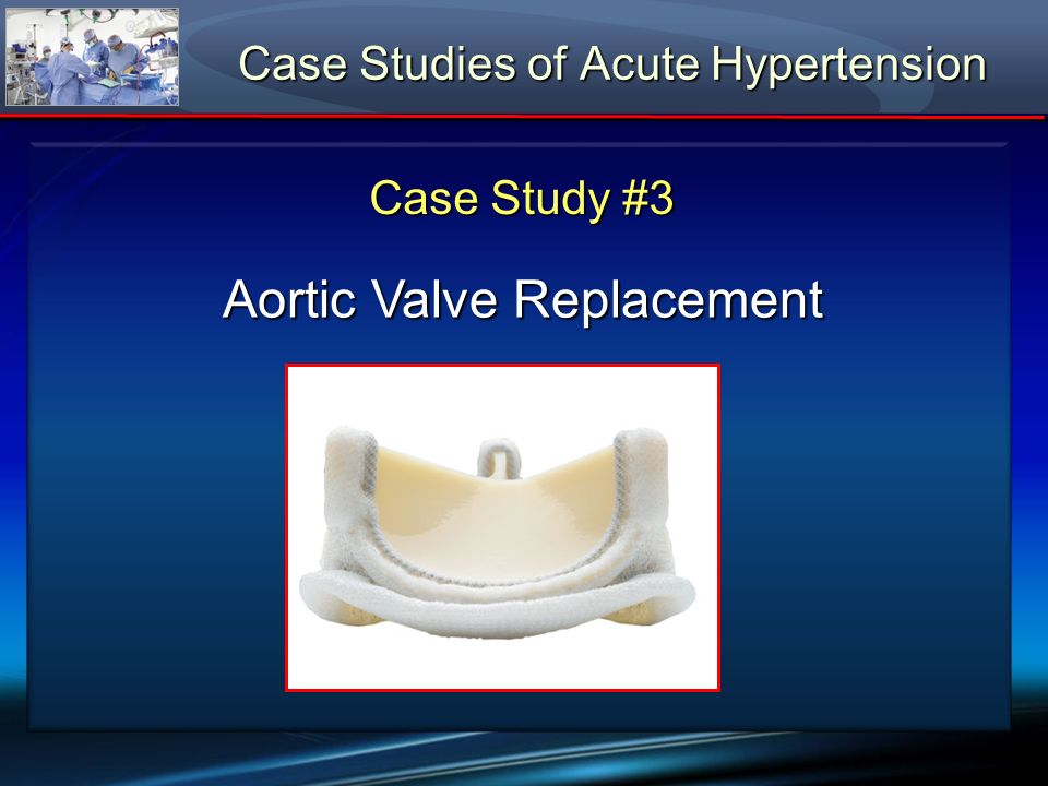 Case Study #3 Aortic Valve Replacement Case Studies of Acute Hypertension