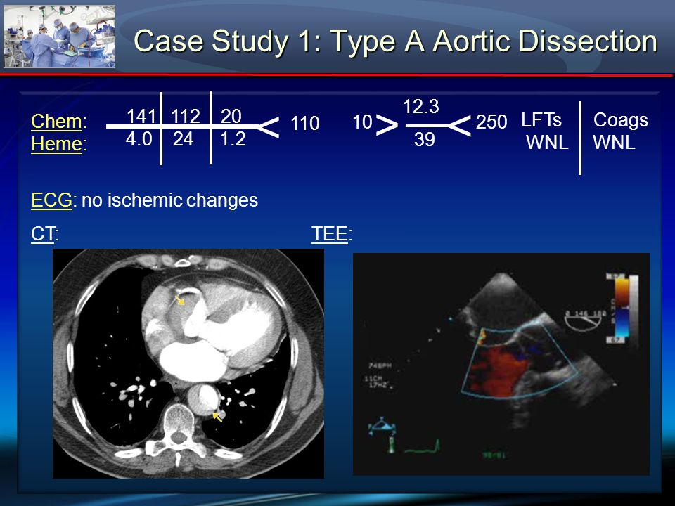 Chem: Heme: ECG: no ischemic changes TEE: Aortic stenosis (AVA 0.7 cm 2 ), gradient (P 51/M 32 mmHg w/CI 2.9 L/min/m 2 ) 139 103 25 4.5 24 1.3 < 91 6.8 172 < > 41.2 14.1 LFTs Coags WNL WNL Case Study 3: Aortic Valve Replacement