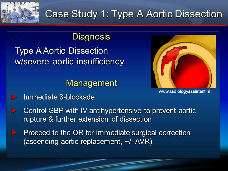 ManagementManagement β-blockade: reduces dP/dtβ-blockade: reduces dP/dt IV antihypertensive: reduces shear forces on the weakened aortic wallIV antihypertensive: reduces shear forces on the weakened aortic wall Surgical correction: reduces observed Type A dissection mortality (~2% per hour).