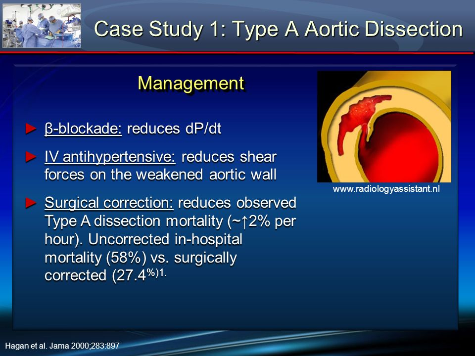 In the OR Case Study 3: Aortic Valve Replacement