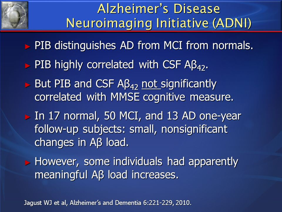 Alzheimers Disease Neuroimaging Initiative (ADNI) PIB distinguishes AD from MCI from normals. PIB distinguishes AD from MCI from normals. PIB highly c