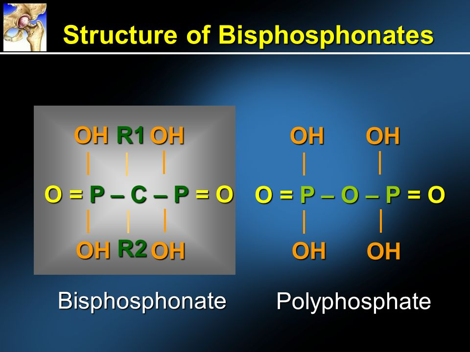 Structure of Bisphosphonates OH OH OH OH R1 R2 O = P – O – P = O OH OH OH OH Bisphosphonate Polyphosphate O = P – C – P = O