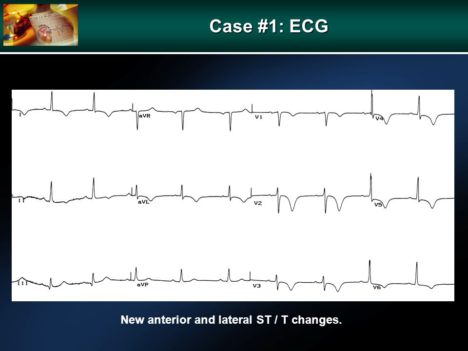 Case #1: ECG New anterior and lateral ST / T changes.