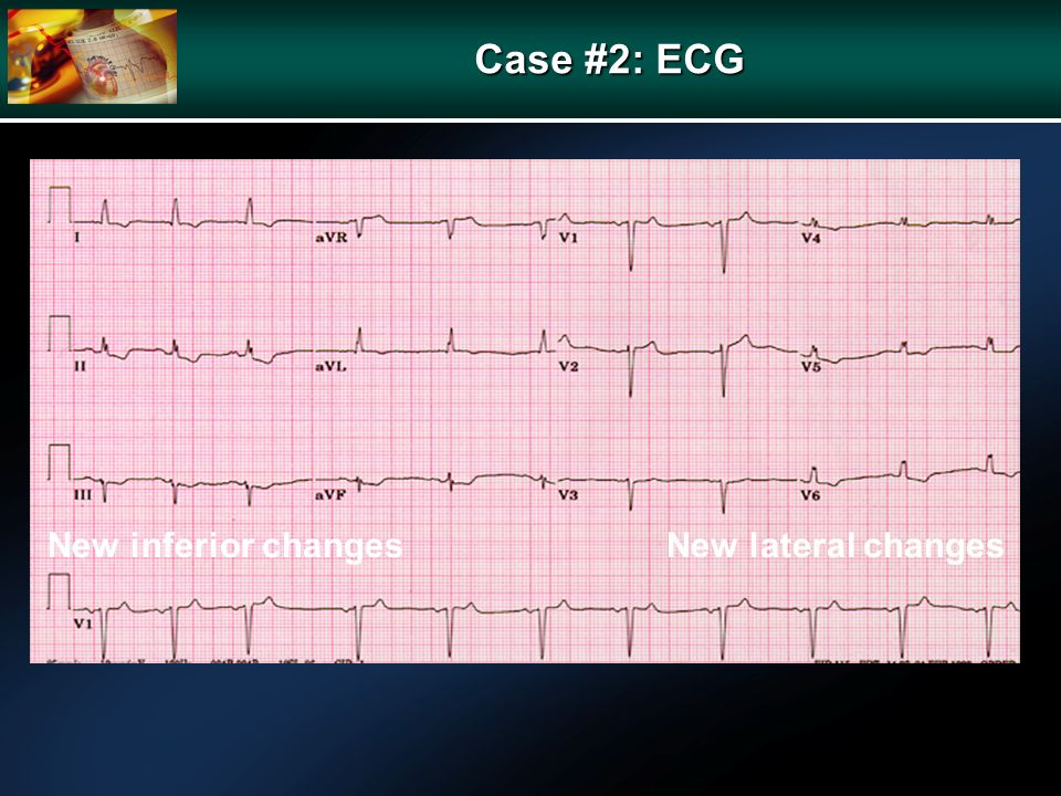 Case #2: ECG New inferior changesNew lateral changes