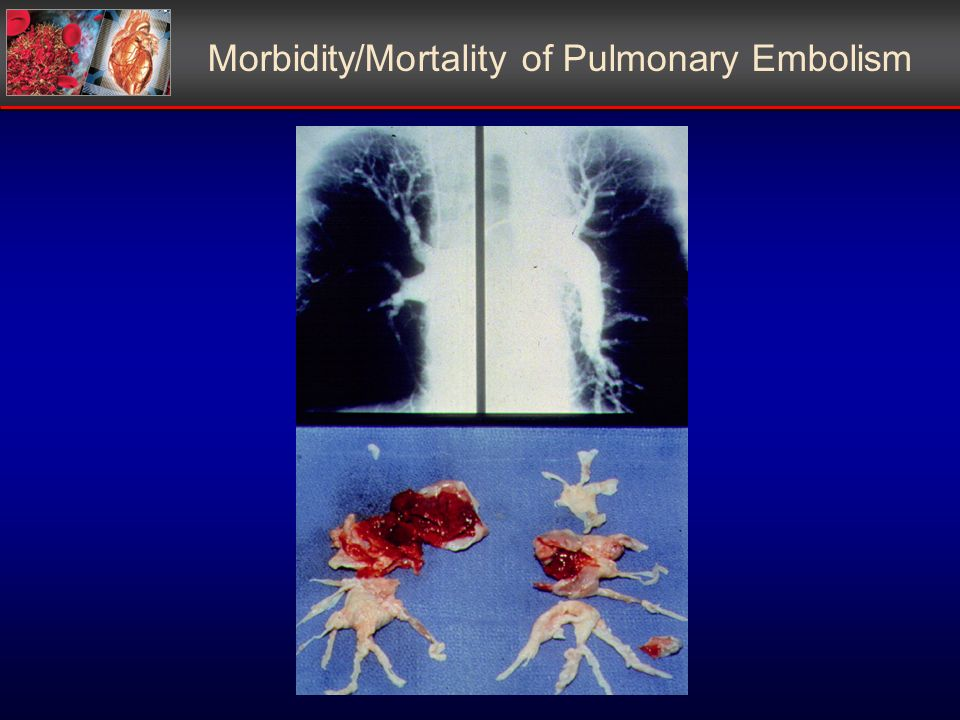 Morbidity/Mortality of Pulmonary Embolism