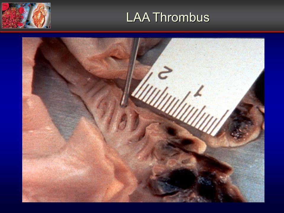 LAA Thrombus