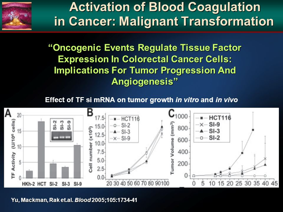 Oncogenic Events Regulate Tissue Factor Expression In Colorectal Cancer Cells: Implications For Tumor Progression And Angiogenesis Effect of TF si mRNA on tumor growth in vitro and in vivo Yu, Mackman, Rak et.al.