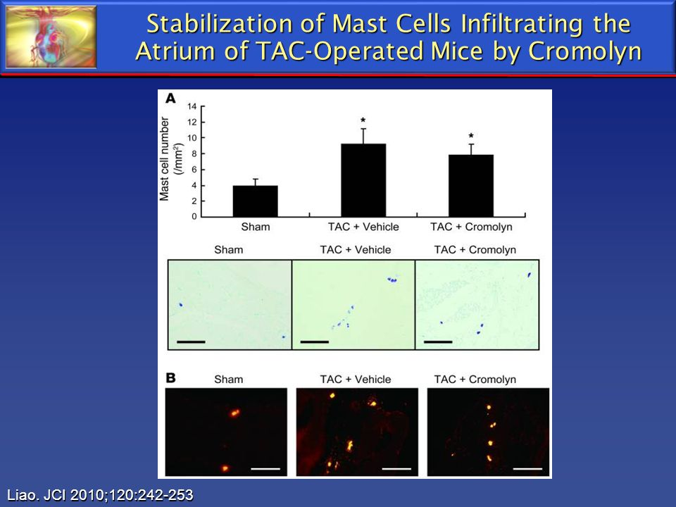 Stabilization of Mast Cells Infiltrating the Atrium of TAC-Operated Mice by Cromolyn Liao. JCI 2010;120:242-253