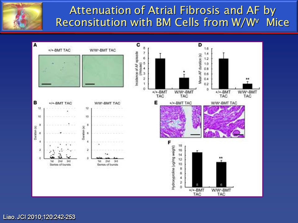 Attenuation of Atrial Fibrosis and AF by Reconsitution with BM Cells from W/W v Mice Liao. JCI 2010;120:242-253